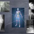 NL24 - artrosi e sua prevenzione - dove